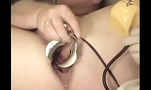 anal speculum opens my cunt